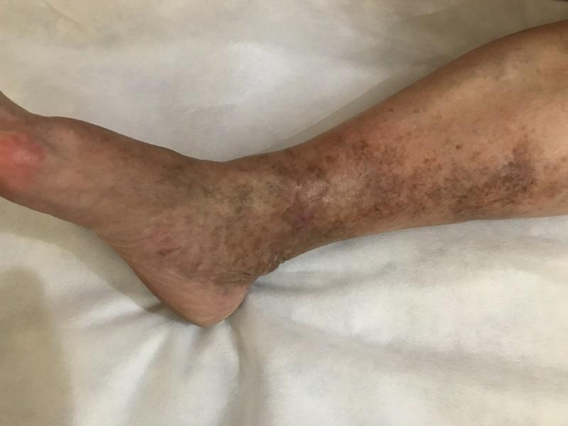 Трофическая язва месяц после лечения